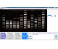 Electrophoresis Image Analysis Software