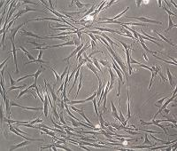 Human Adipose Tissue Derived Mesenchymal Stem Cells
